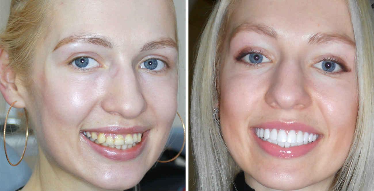 Установка композитных виниров в стоматологической клинике Telo's Beauty.