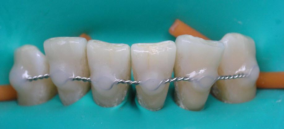 Шинирование зубов при заболеваниях пародонта